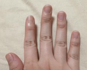 Beforeの爪