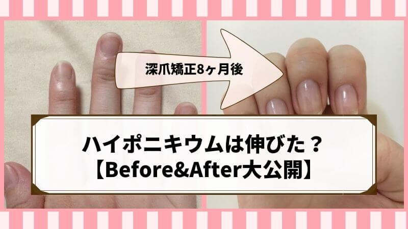 ハイポニキウムはどのくらいの期間で伸びる?深爪矯正を8ヶ月続けて綺麗な爪に【Before&After大公開】