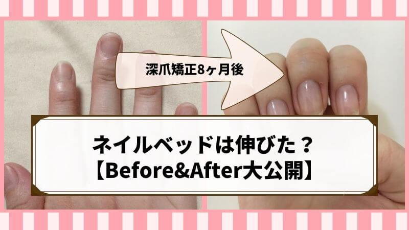 ネイルベットを伸ばす!深爪矯正を自力でした結果…8ヶ月で綺麗な爪に【ブログでBefore&After大公開】